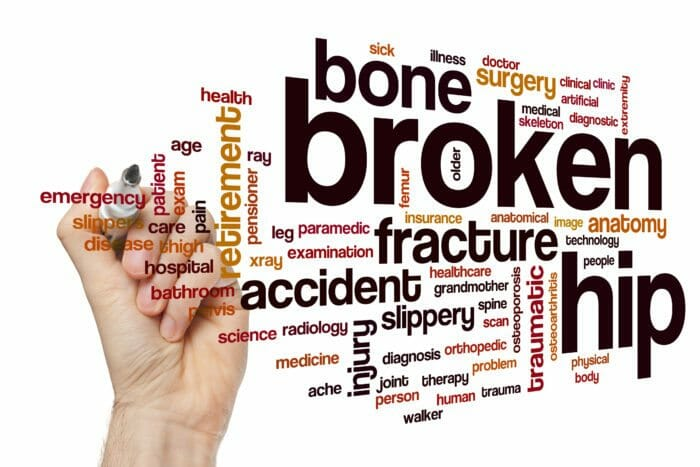 Lawsuit - injury at Open House